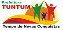 Prefeitura de Tuntum - MA anuncia Concurso Público com mais de 390 vagas